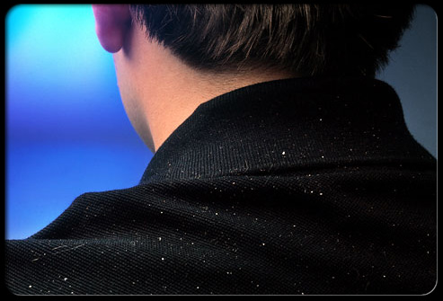 the-truth-about-dandruff-s1-photo-of-dandruff-on-mans-shoulder