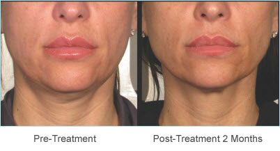 before-after-chin-neck-lift-with-ulthera
